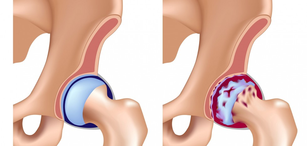Hip Replacement Surgery Kandivali