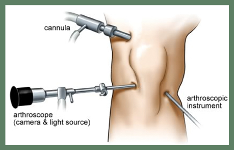 Best Arthroscopic surgeon Mumbai