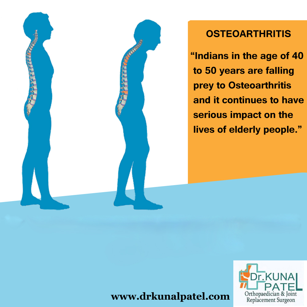 Osteoporosis treatment Mumbai