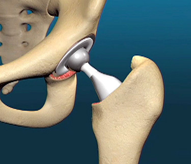 hip-replacement copy