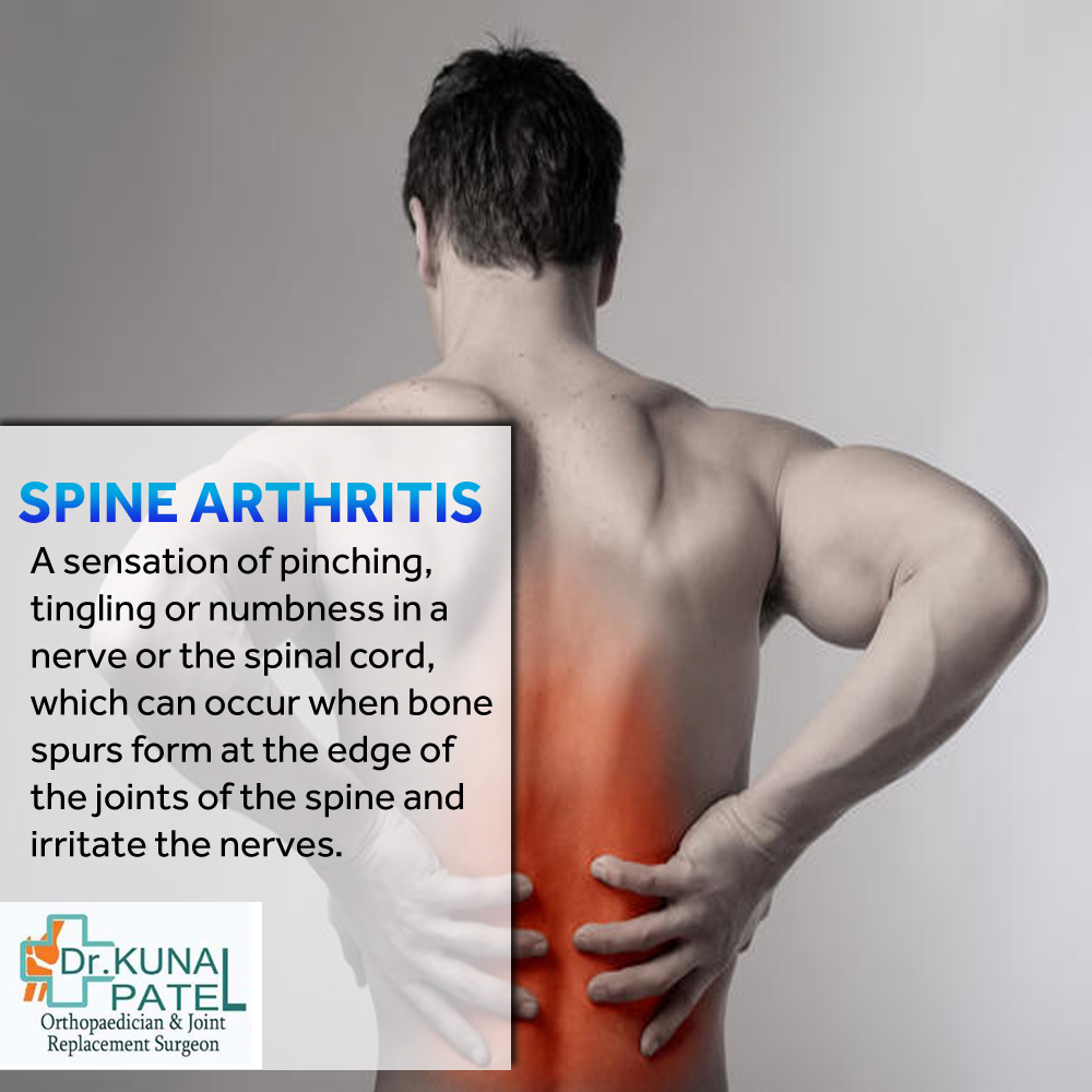 Spine Specialist Mumbai
