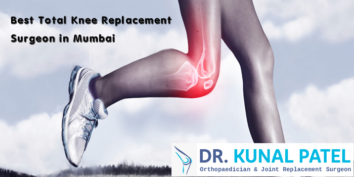Best Total Knee Replacement Surgeon in Mumbai.