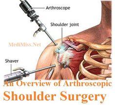 Shoulder Arthroscopy Kandivali