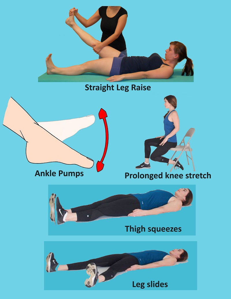 Exercise After Knee Replacement