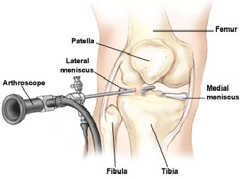 Top 10 Arthroscopic Surgeon Mumbai