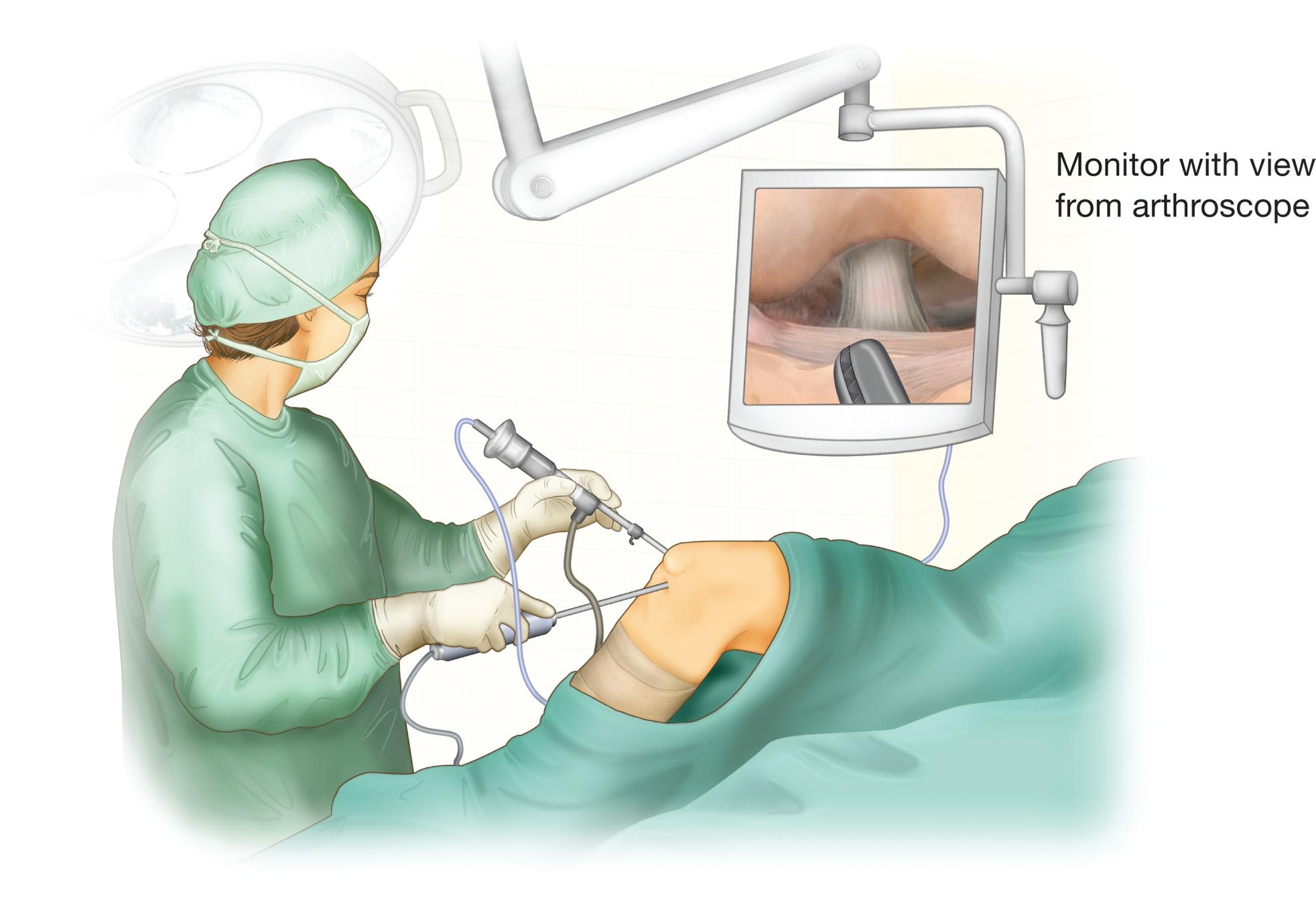 List of Best Arthroscopic Surgeon Mumbai