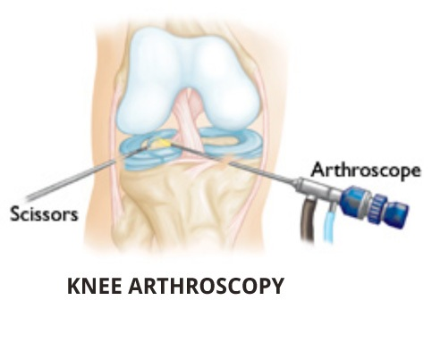 Famous knee Arthroscopic Surgeon Mumbai