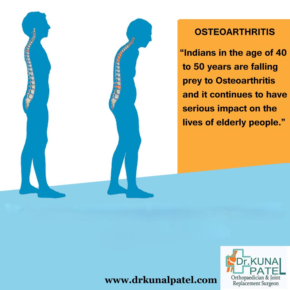 Osteoporosis treatment Mumbai