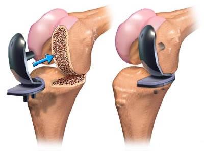Best knee Replacement Doctor Kandivali