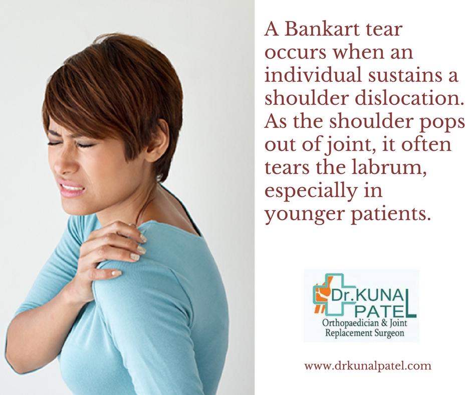 Bankart Shoulder Injury