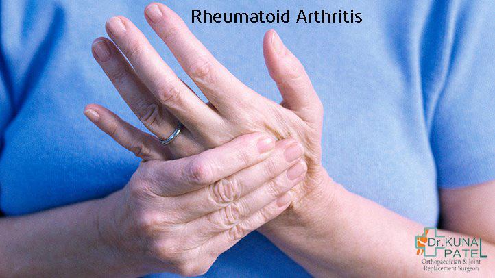 Best Rheumatoid Arthritis Doctor Mumbai