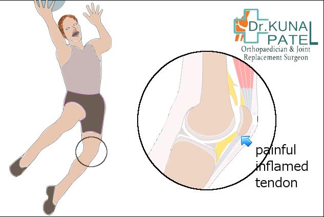 Best Treatment for knee injury Mumbai