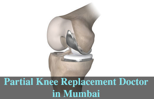 Partial knee replacement doctor Mumbai