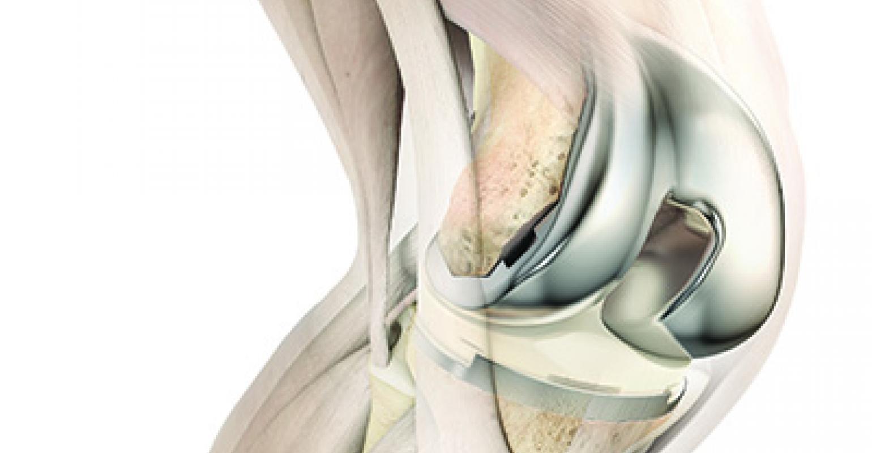 best knee replacement surgeon in Mumbai