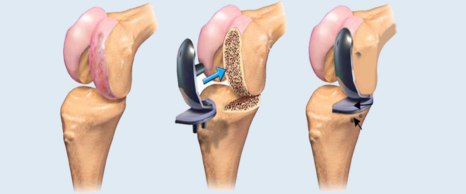 joint replacement surgery in Mumbai